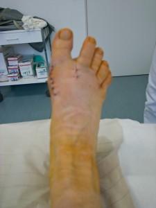 Mein rechter Fuß